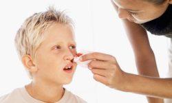 Почему идет кровь из носа. Причины носовых кровотечений