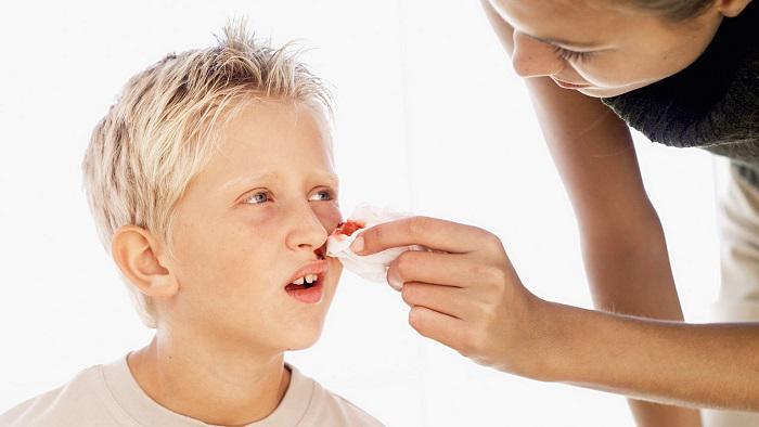 Почему идет кровь из носа