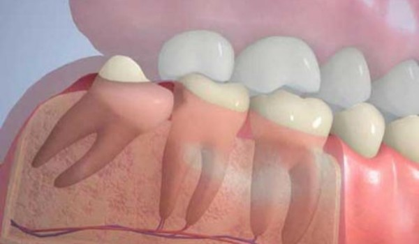 Зачем удалять зубы мудрости